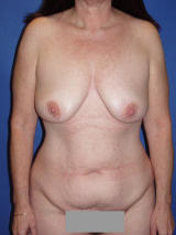 Tummy Tuck Surgery (Abdominoplasty) with Breast Augmentation before 121179