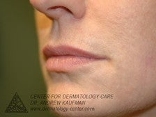 Juvederm Injection to Augment Lip Line before 315096