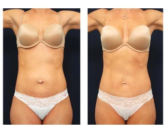 Abdominoplasty - Tummy Tuck before 392958
