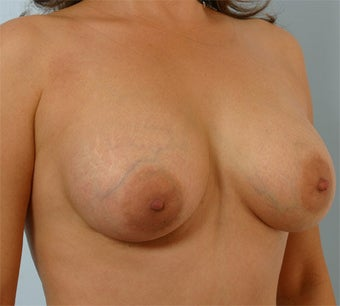 Breast Augmentation after 260941