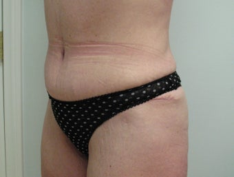 Circumferential Lower Body Lift after 535895