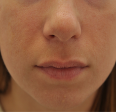 Acne Scarring after 426033