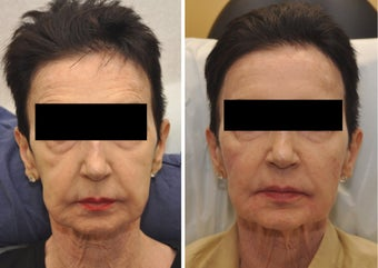 Cheek Augmentation before 216631