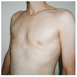 Periareolar Excision Gynecomastia / Liposuction after 334404