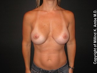 Breast Implant Revision after 542387