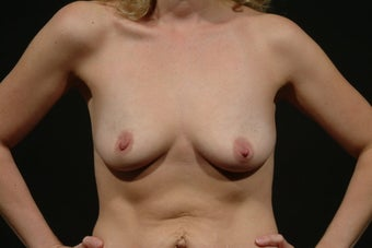 Breast Augmentation before 112782