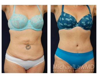 Abdominoplasty - Tummy Tuck after 629026