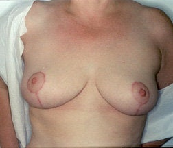 Breast Reduction after 234015