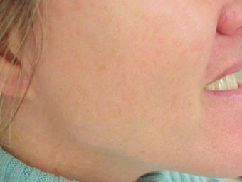 Photofacial Laser Treatment after 374393