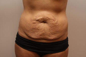 Tummy Tuck before 459609