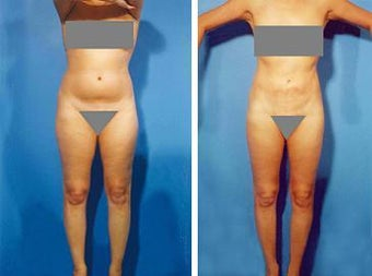 Liposuction before 636226