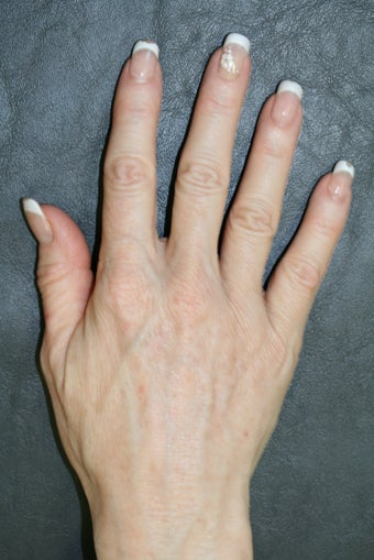 Radiesse treatment for hand rejuvenation after 165259