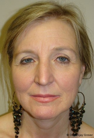Facelift with browlift and lower blephorplasty before 617176