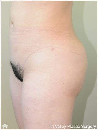 Brazilian Buttock Lift after 420872