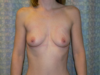 Breast Augmentation Saline above the muscle before 490950