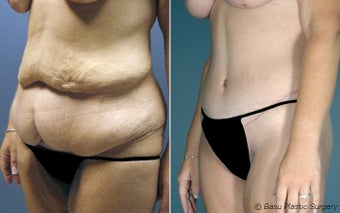 Tummy Tuck - Dr. Bob Basu, Houston, Texas before 144984