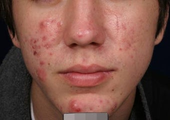 Acne laser treatment with PDT before 136715