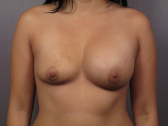 Breast Lift before 311084