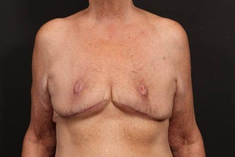 Breast reconstruction after 614909