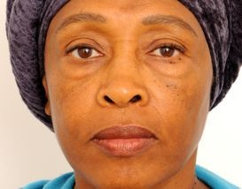 Lower Blepharoplasty (Lower Eyelids) before 376873