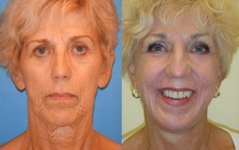 Image Lift, Full Face Laser 351059