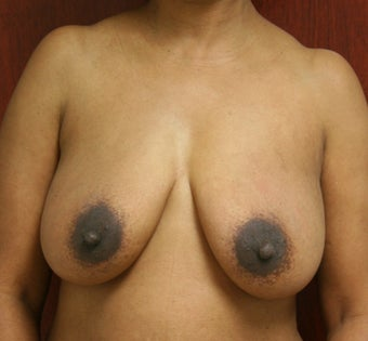 Bilateral Breast Reconstruction with Implants before 302908