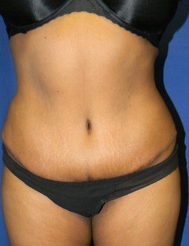Abdominoplasty after 381846