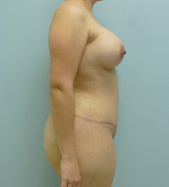 Tummy Tuck with Breast Augmentation 468905