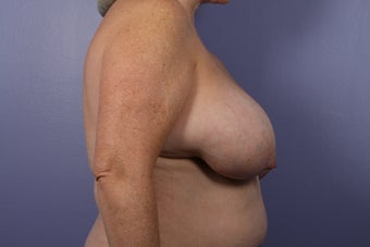 Breast lift with Implants before 302594