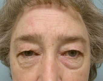 Upper and Lower Lid Blepharoplasty and Cheeklift before 148579