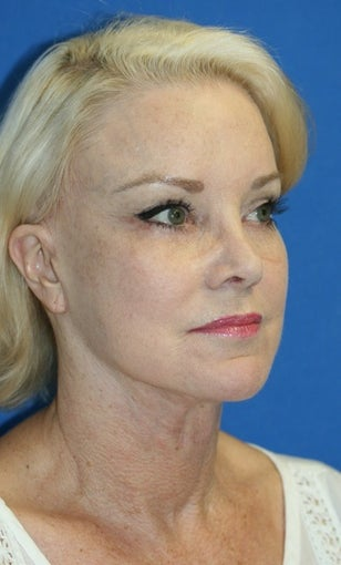 Facelift with Extended Necklift, Browlift, Peri-orbital Fat Transfer, and Skin Pinch after 574439