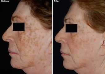 Fraxel Laser Resurfacing before 97775