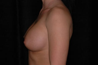 Breast Augmentation 336380
