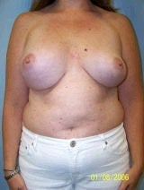 Revision Breast Surgery before 370397