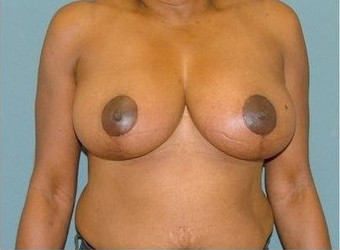 Breast Reduction after 97010