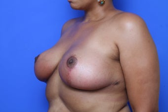 Breast Reduction after 621909