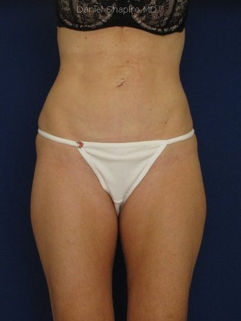 Tummy Tuck Revision with Vaser Liposuction of the abdomen before 422791