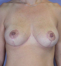 Breast Lift after 285359