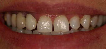 Porcelain Veneers and Crowns before 485379