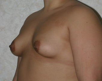 Breast Augmentation before 283500