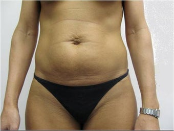 Laser Liposuction and Mini Tummy Tuck  before 341296