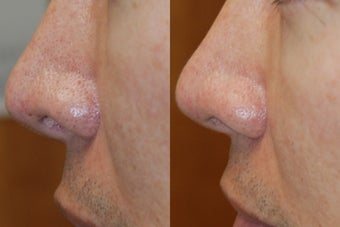 Non-Surgical Rhinoplasty Lowering Nostril Height before 160626