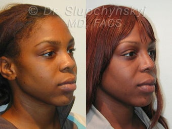 African American Rhinoplasty after 609011