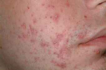Acne treatment with Accutane before 95915
