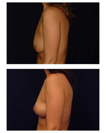 Breast Lift / Mastopexy before 286874