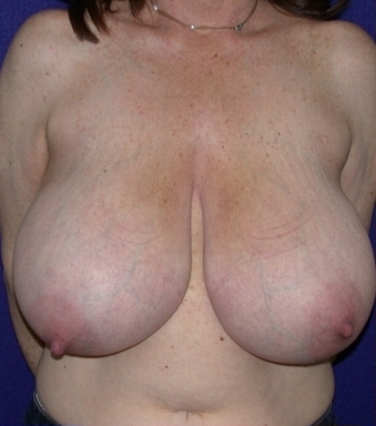Breast Reduction before 213158