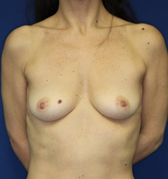 Breast Implants before 381816