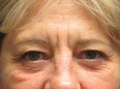 Brow Lift before 541479