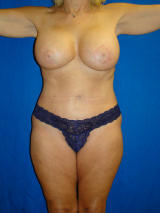 Breast Augmentation with Benelli Lift and Tummy Tuck after 133888