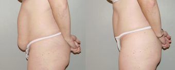 Abdominoplasty after 374957